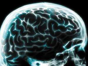 $185m brings hope of dementia cure