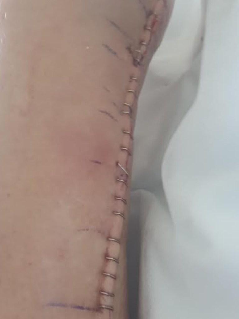 Julia Kent's leg following surgery. Picture: Supplied