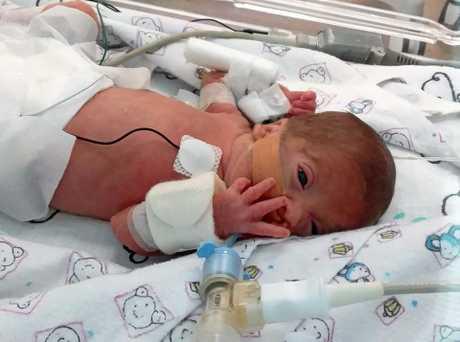 Henry Joseph Ashton was born premature at 24 weeks.