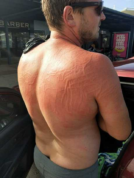 He was left with painful looking welts all over his back. Picture: Brendan Osborn