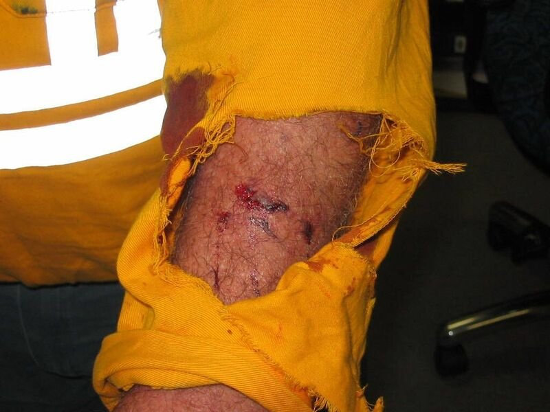 Energex and Ergon staff suffered 71 injuries from dog bites and nearly 200 other incidents and close-calls in Queensland between July 2017 and October 2018.