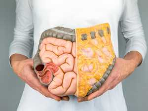 Ipswich residents more likely to get bowel cancer