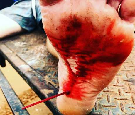 Darwin fisherman Patrick Lawlor was impaled by a stingray barb while fishing at Gunn Point in February last year.