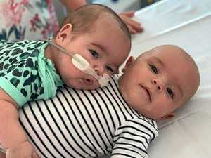 Brave baby boy to watch over twin brother as guardian angel