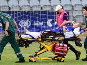 Matildas star confirms horrendous broken leg
