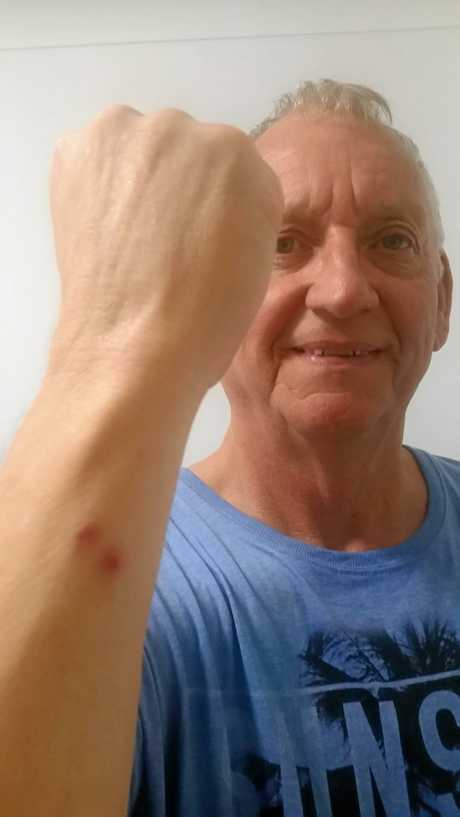 ONCE BITTEN: Dennis Carroll was lucky when a brown snake struck him on the arm last week. He says his