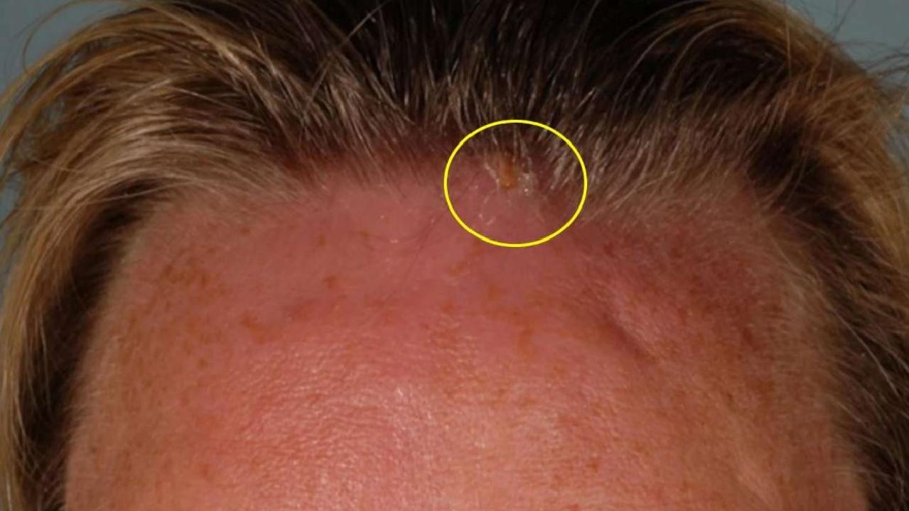 The woman was initially treated for an infected bug bite but when she returned three days later doctors discovered an opening near her hairline. Picture: BMJ Case Reports 2019