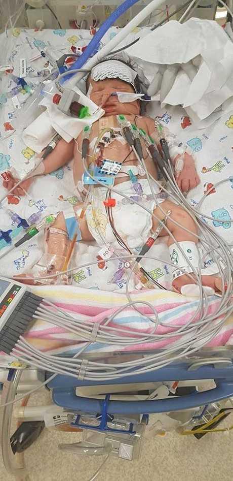 Tariq Benson underwent life saving open heart surgery at just four days old.