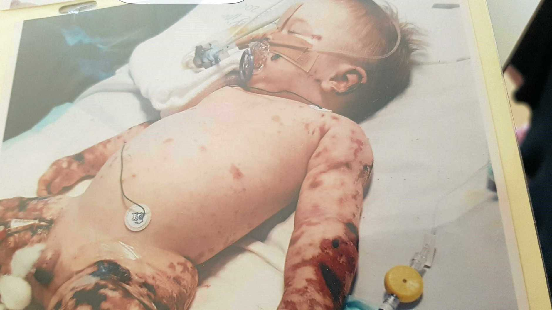 FIGHTER: The devastating affect of meningococcal disease on Thorn's 7-month old body