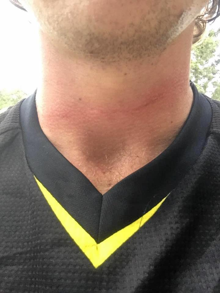 Ben Bird was lucky to walk away with only graze to the neck when he crashed into