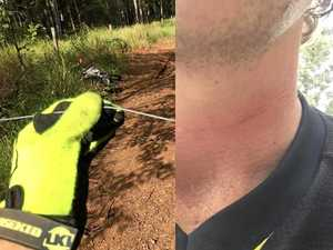 Gympie man lucky to be alive after riding into sick mantrap