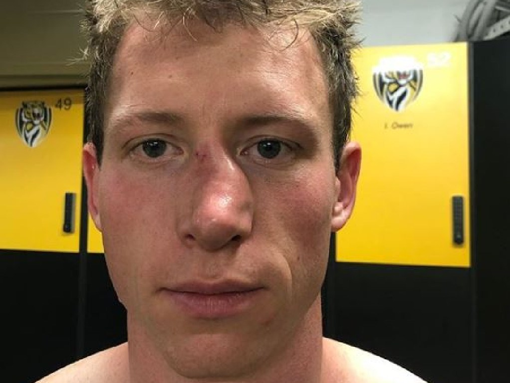 Teammate Trent Cotchin posted this picture of Grimes on Instagram last month after he broke his nose at training. Picture: Instagram/@trentcotchin9