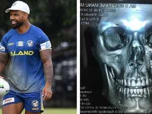 Tongan Terminator: Eel's face rebuilt after fracture