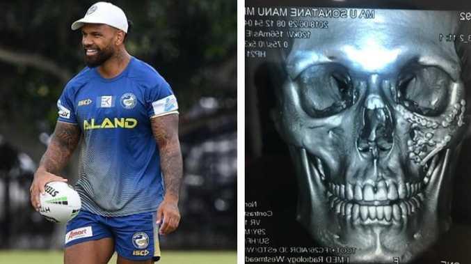 Manu Ma'u had his face rebuilt.
