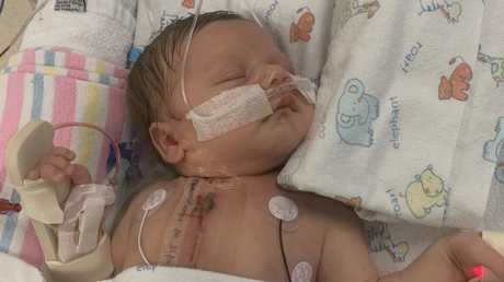Little Archie is doing well after open heart surgery at just seven days old.