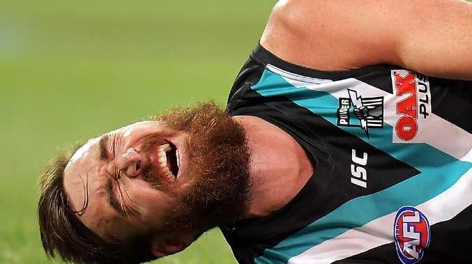 Charlie Dixon grimaces in pain after breaking his leg against West Coast. Picture: Daniel Kalisz/Getty Images)