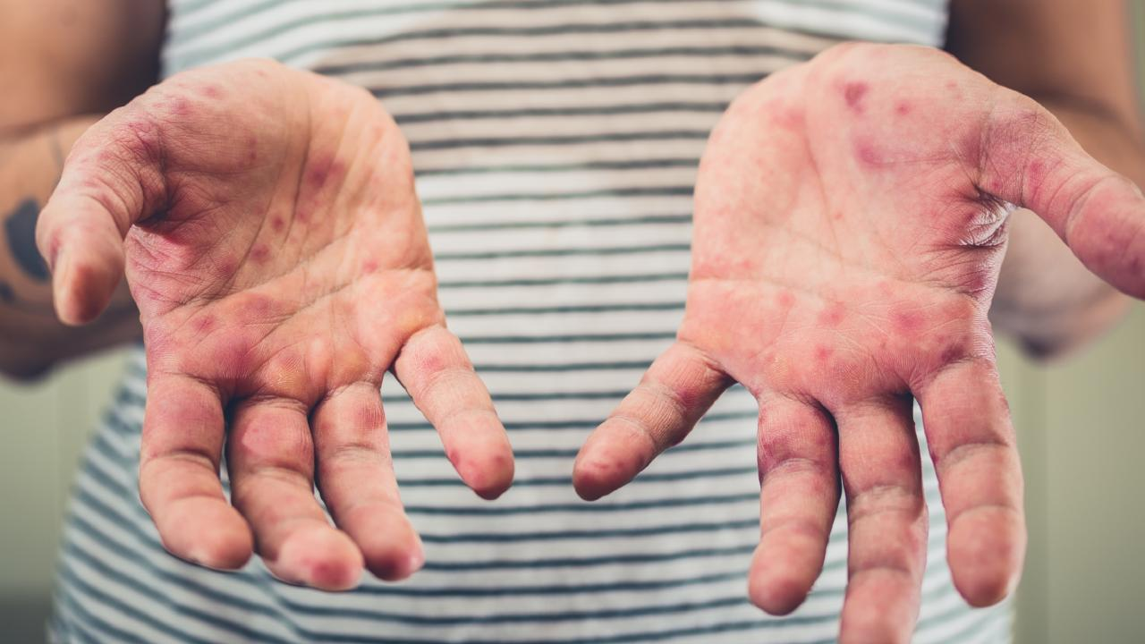 Measles has seen a 30 per cent global increase as Russian troll farms spread anti-vaccination propaganda. Picture: istock