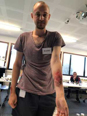 Brandon Richardson with his very realistic looking fake burn.