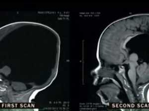 Boy born 'without brain' defies odds