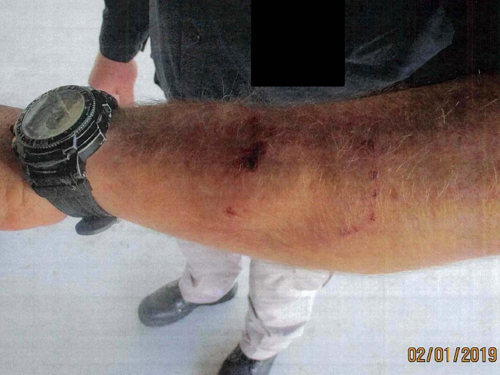 Bite marks on the arm of a Moreton Bay Regional Council ranger, said to be from Sarge the Staffy. Photo: Moreton Bay Regional Council.