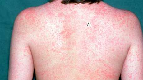 The symptoms of measles include red spots.