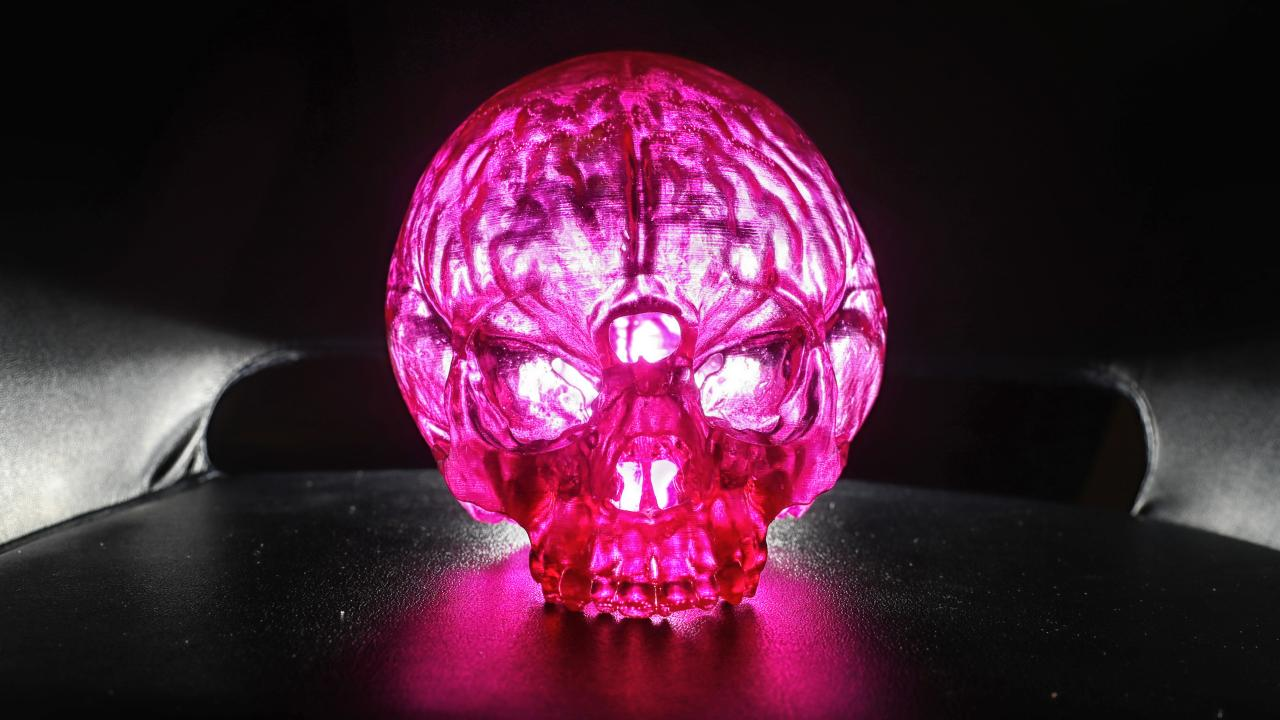 A 3D model of Jack's skull, showing the hole where his brain was leaking out of his head. Picture: Alex Coppel