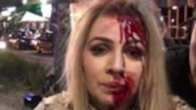 Kayla Potts bleeding heavily from the face. Picture: 9 News
