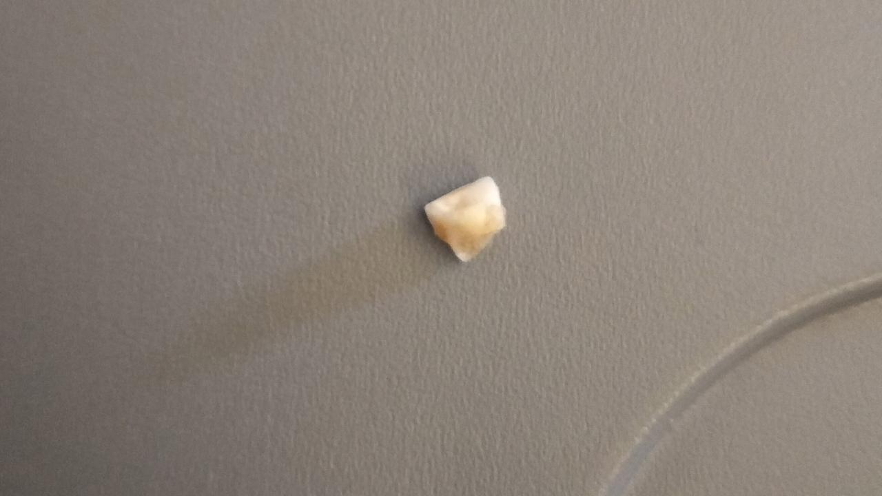 Melbourne man Bradley Button chomped down on what he believes was a chipped tooth in his Singapore Airlines meal.