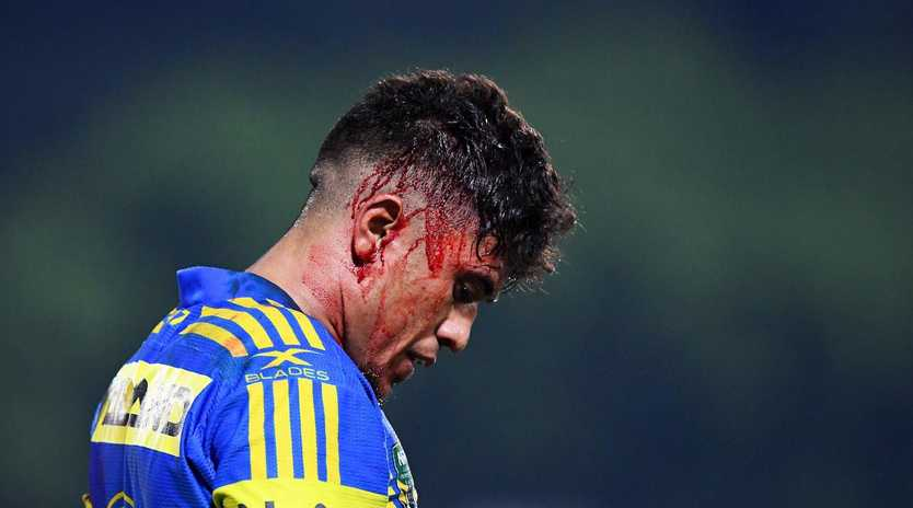 Parramatta Eels Kaysa Pritchard copped a head wound during Saturday's game against the North Queensland Cowboys at TIO stadium in Darwin, NT. Picture: Justin Kennedy