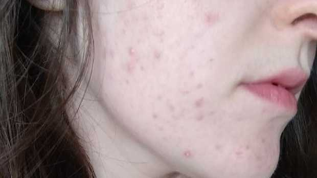 The 20-year-old woman was accused of catfishing by a 'potential boyfriend' after she covered her acne with make-up. Picture: Reddit