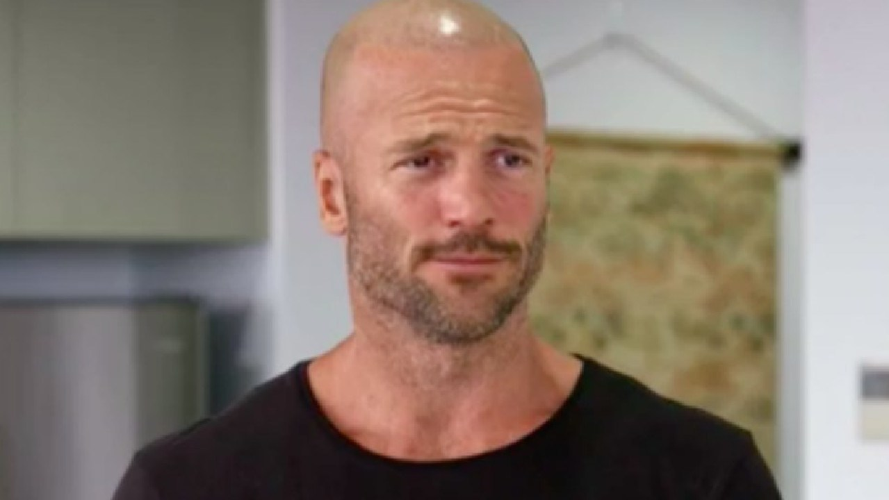 Married At First Sight's Mike Gunner has come clean about his hairline.