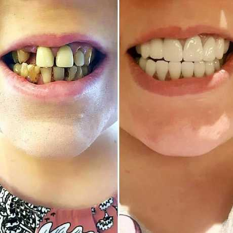 """Australian woman Kate from Perth went to Seminyak Bali for a """"whole mouth reconstruction""""."""