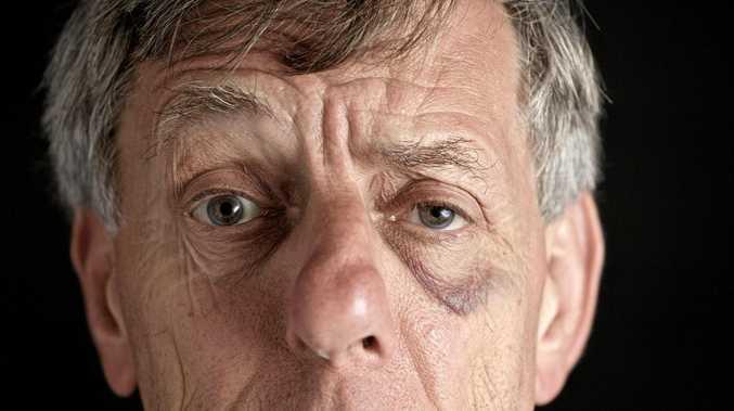 Man jailed for headbutting elderly friend
