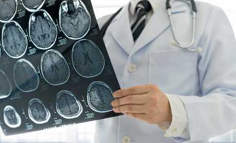 A stroke attacks up to 1.9 million brain cells a minute.