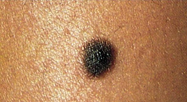 Melanoma sufferers were at a frightening new risk according to new research by University of the Sunshine Coast and Queensland Cancer Council.