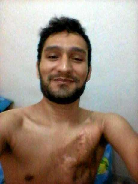 INJURY: Mushtaq Hussain's scars.