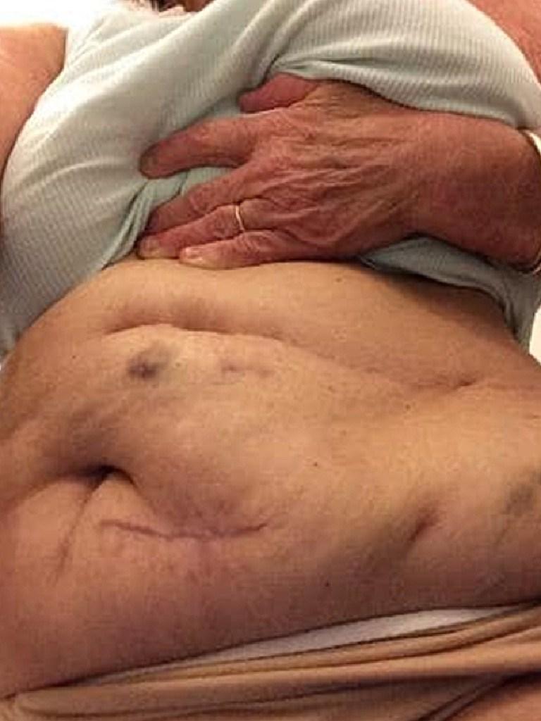 Pamela Kilah's scarred abdomen