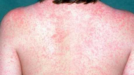 Queensland Health has issued a measles warning.