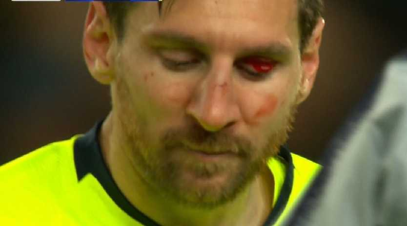 Lionel Messi was looking the worse for wear.