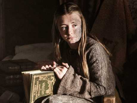 Greyscale, which affected Princess Shireen, is a lot like a real-life disease. Picture: HBO