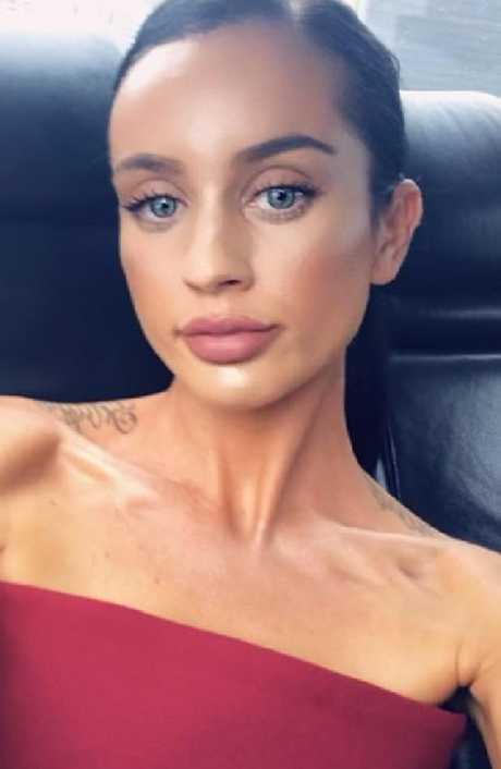 MAFS contestant Ines Basic has addressed fan speculation she's undergone a lip boosting treatment.