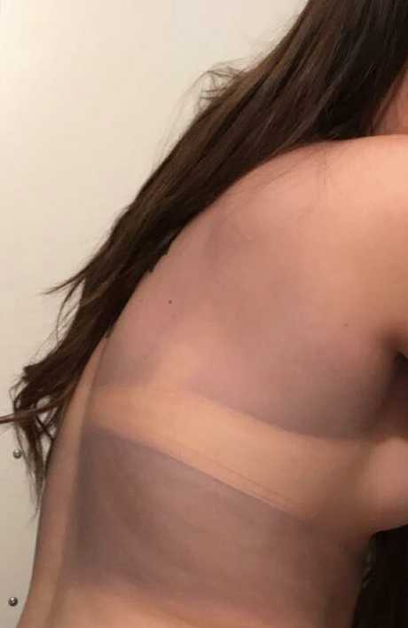 The brand new crop top had rubbed off onto her skin, staining it purple.