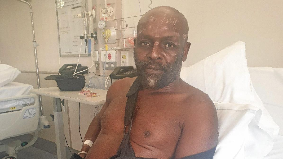 Friends of well know African musician Kobya -the victim of a hit and run in Nimbin - have launched a GoFundMe campaign in an effort to raise funds while he recovers.