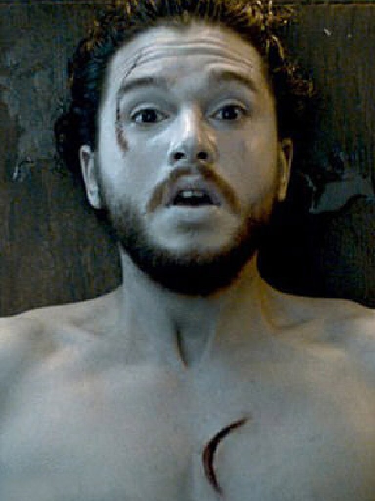 Jon had three distinctive scars when he first came back from the dead