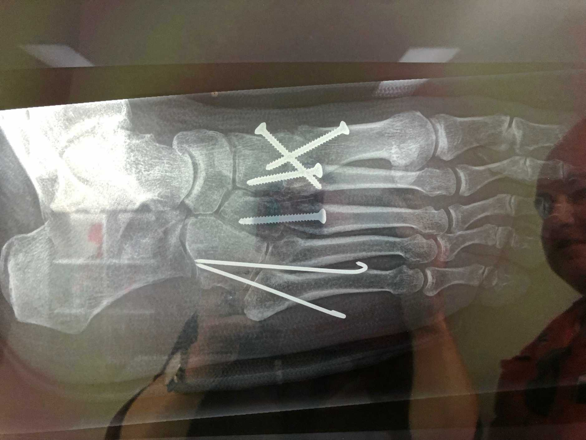 These scans show the severity of his injuries, which took three operations to fix.