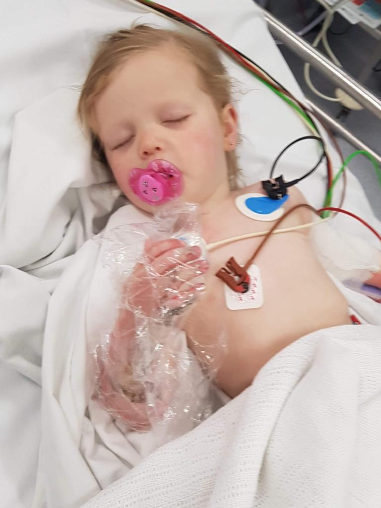 Serenity Parker in the burns unit after falling into a campfire.