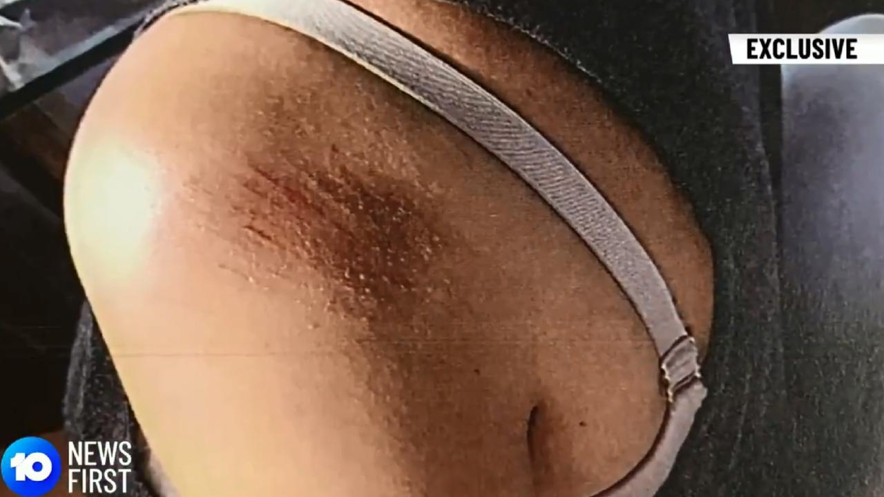 Video footage from body-worn police cameras shows Ms Ivkovic's alleged injuries. Picture: Ten News