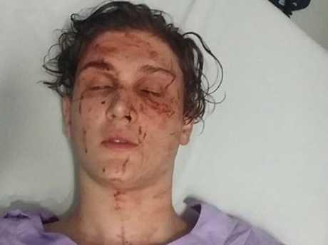 Kyle's injuries were shocking. Picture: Supplied