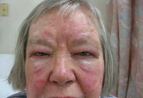 This woman has severe Thyroid Eye Disease which can cause protrusion of the eyes, swelling, pain, blurred vision and blindness. When a patient's eyes are affected to this extend, it is not common for them to improve. Surgery can be recommended in some patients to correct vision, however it is not always successful. The protrusion is not usually able to be corrected.