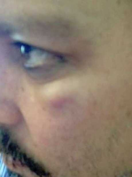 Johnny Depp's eye appears bruised. Picture: Fairfax County